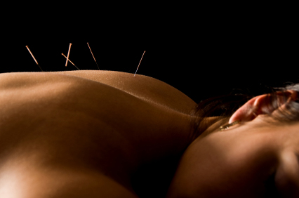 acupuncture needles resized 600