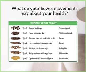 #14 Poo Chart A